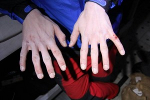Skin Care, Hands, Climbing