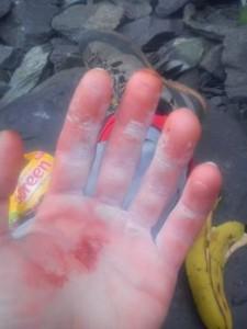 Skin Care, Hands, Climbing,